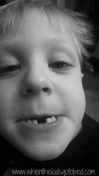 finn lost tooth