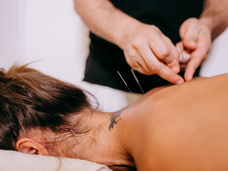 TCM today: Acupuncture