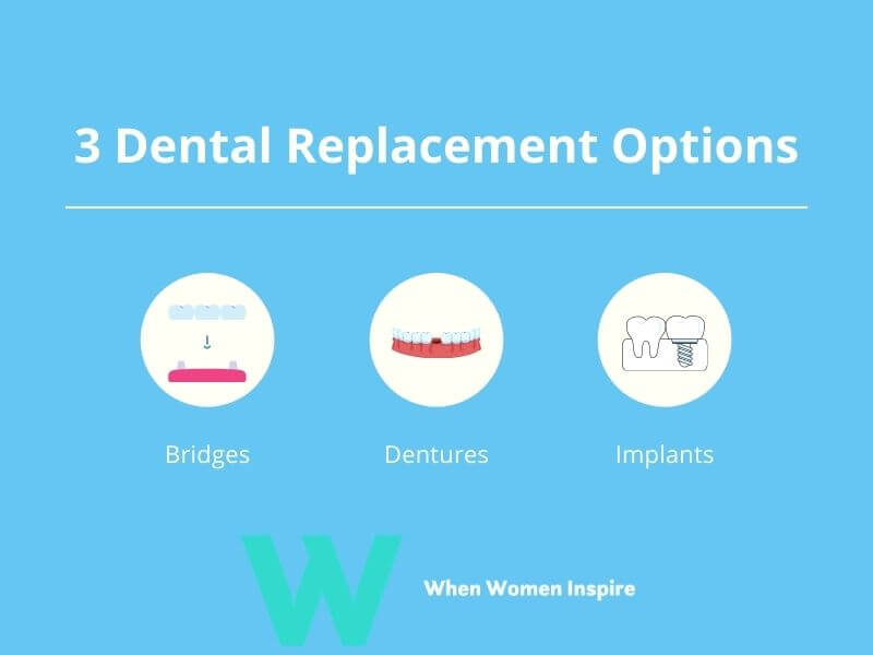 Dental replacement options for missing teeth