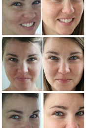 Rodan + Fields: Before and After Pictures and My Thoughts