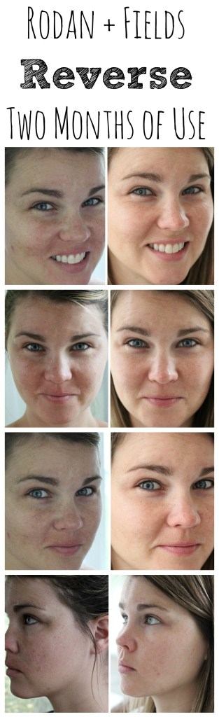 Rodan and Fields Before and After with the Reverse Regimen