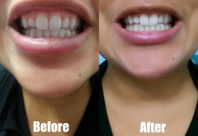 Image result for professional teeth whitening