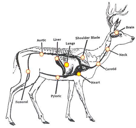 Vascular Diagram Of Neck