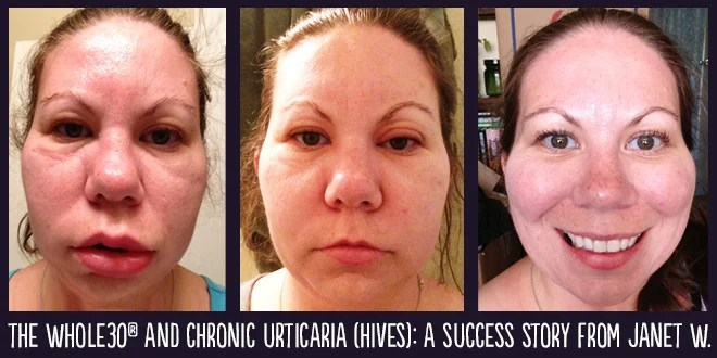 Whole30 Success Story Janet W And Chronic Urticaria Hives The Program
