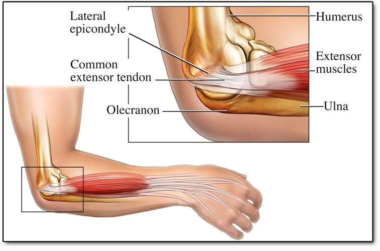 Inflamed Tendons In Forearm