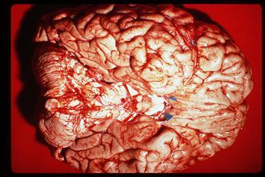 brain1.jpg (27515 bytes)