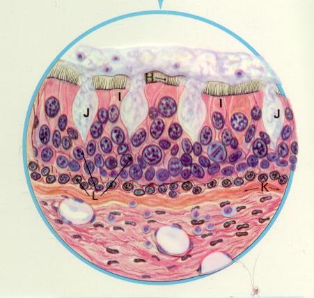 damaged cilia