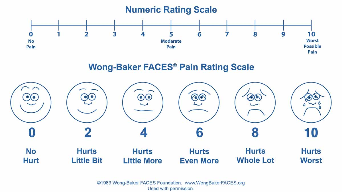 hight resolution of reassessing the assessment of pain how the numeric scale became so popular in health care whyy