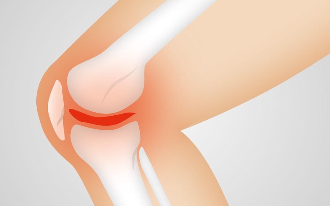 Mewaspadai Osteoarthritis, Nyeri Luar Biasa pada Sendi Lutut