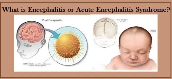 Chamki Fever / Bukhar (Encephalitis)