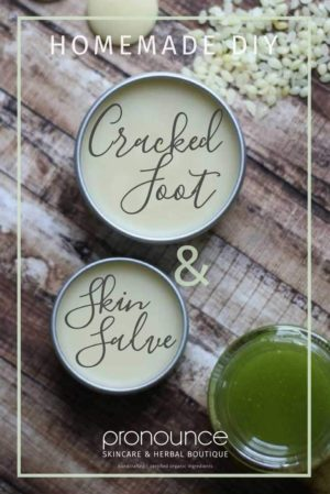 170-diy-cracked-foot-heel-salve-recipe-get-your-feet-ready-for-spring-and-summer