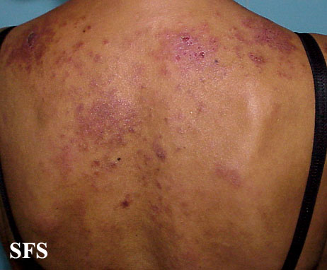 Systemic Lupus Erythematosus Cost Effectiveness Of Therapy