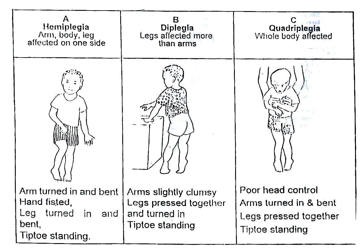 Lesson 20 Disability And Rehabilitation Part 2