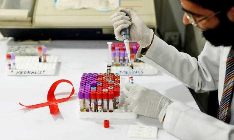 thí nghiệm lâm sàng HIV
