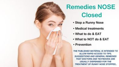 Photo of 10 Ways for How to Get Rid of Runny Nose