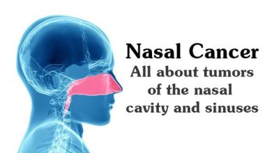 Photo of Nasal Cancer: All About Tumors of the Nasal Cavity & Sinuses