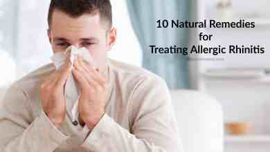 Photo of 10 Natural Home Remedies for Treating Allergic Rhinitis
