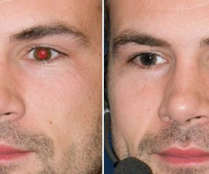 How to Remove Red-Eye in Photoshop