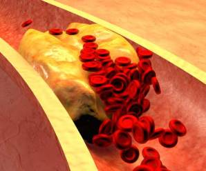 10 Effective Tips to Lower Your Cholesterol Quickly