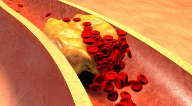 Decrease Cholesterol - Oats