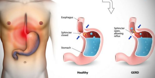 Treat-Acid-Reflux-and-Heartburn-Naturally