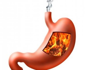What Causes Heartburn? – How do you relieve heartburn?