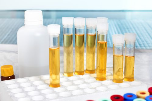 Synthetic Urine Test