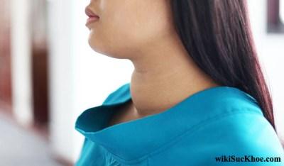 Bệnh bướu cổ: Khái niệm, nguyên nhân, triệu chứng, phòng ngừa