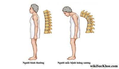 Bệnh loãng xương: Nguyên nhân, triệu chứng, điều trị và cách phòng ngừa