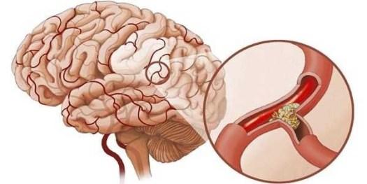 Bệnh tai biến có thể được ngăn ngừa