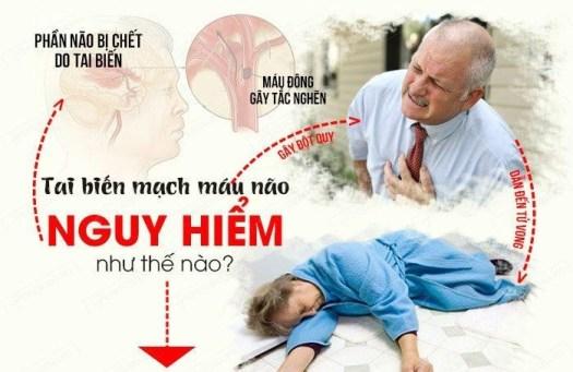 Bệnh tai biến do thiếu máu lên não