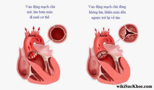 Bệnh hẹp van động mạch chủ