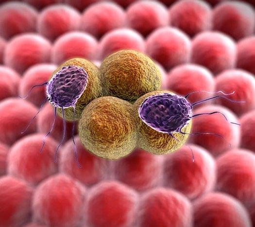 Tế bào gây nên bệnh máu trắng