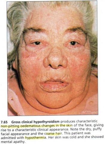 Hypothyroidism Wikiwel