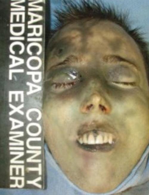 Travis Alexander Autopsy : travis, alexander, autopsy, Travis-Alexander-outopsy-images3, WildAboutTrial.com, Latest, Criminal, Trial, Coverage