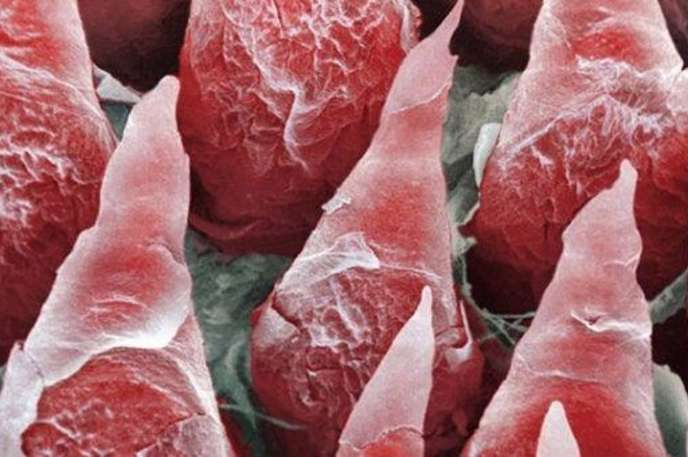 Tongue : This is an up-close view of the taste buds on the tongue. This shows the importance of cleaning it as bacteria can get in between the taste buds rather easily.