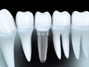 Dental Tooth Implants & Local Dental Services Near Me