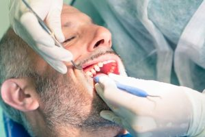 Local Dentist For Root Canal – Leola PA – Dr William Poole
