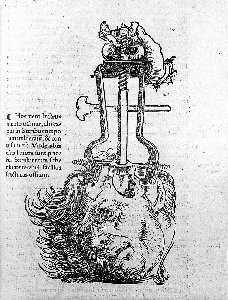 Trepanation, from, 'Chirurgia'. Credit: Wellcome Collection. Attribution 4.0 International (CC BY 4.0)