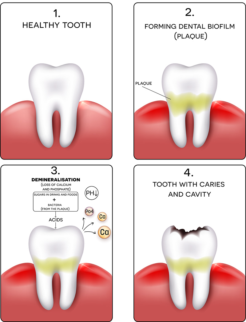 Cavities: Symptoms Causes and Treatment - Willow Pass ...