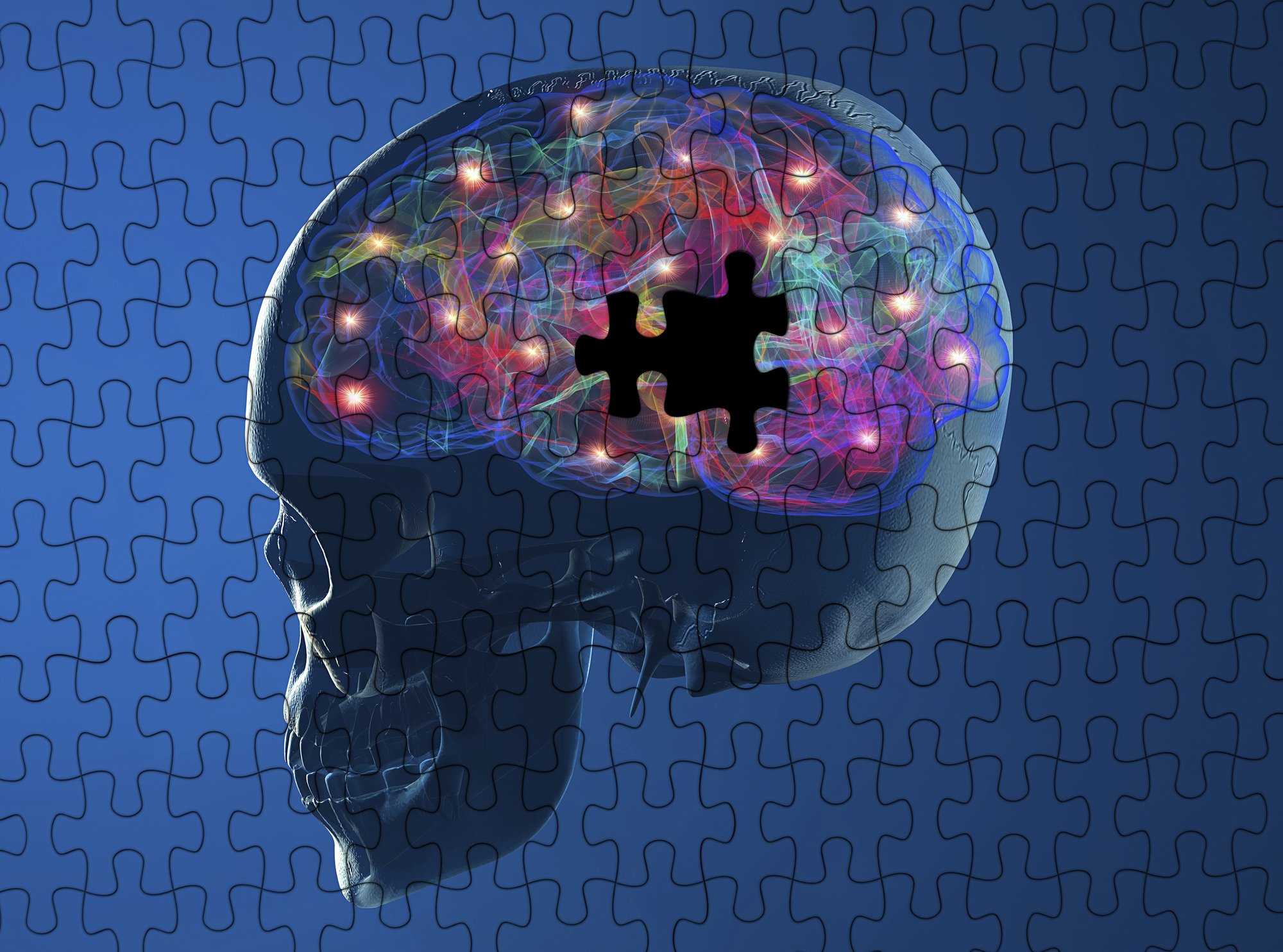 Addiction And The Brain Areas Of The Brain Affected By