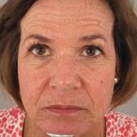 62 Year Old Female 1 Year Pre Treatment with Botox