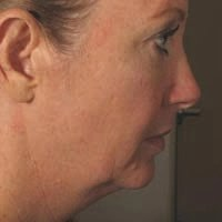 48 Year Old Female 4 Months Pre Ultherapy Treatment