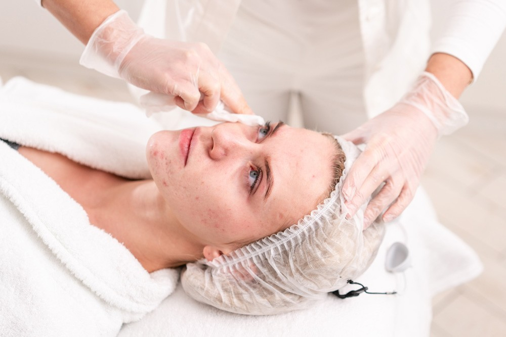Treatment for Acne Breakout