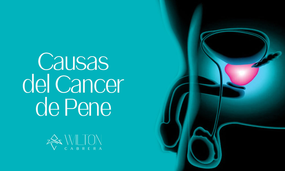 causas-del-cancer-de-pene