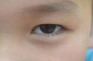 Augenbrauen Haarausfall