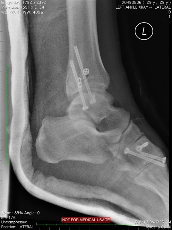 Left-Ankle-620x827
