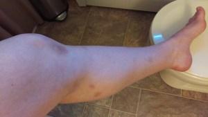 BJJ bruises