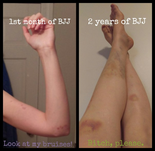 Comparing bruises from the 1st month of BJJ and the 2nd year of BJJ
