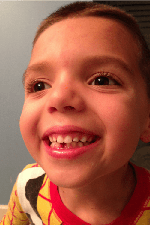 His first gap toothed smile.